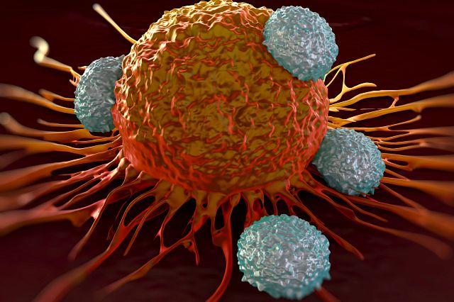 Illustration of tumor cells.