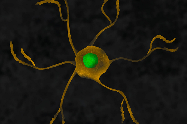 graphic image of microglia in the color orange and green on a black background.
