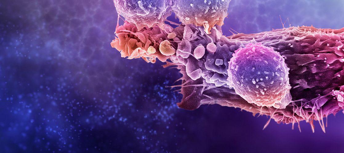 Kibur Medical's implantable microdevices revolutionizes preclinical oncology studies.