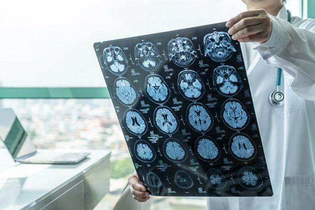 medical doctor holding up Magnetic Resonance Imaging (MRI) film diagnosing neurodegenerative