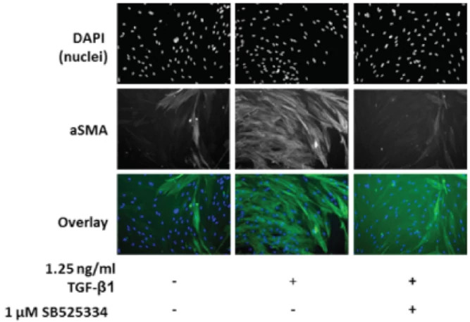 Image is from the Fibroblast-to-Myofibroblast Transition (FMT) Assay. It displays the levels of lung-derived fibroblasts from the TGF-β1 trigger via high content imaging.