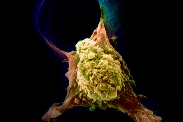 Cancer cell being targeted by CAR T Cell therapy.