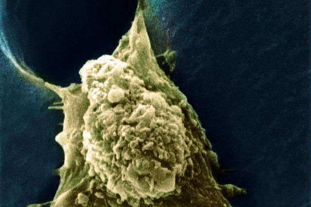microscopic image of cancer cell