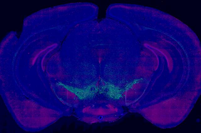 Parkinson's disease Model. Mouse brain tyrosine hydroxylase staining in the subtantia nigra pars compacta.