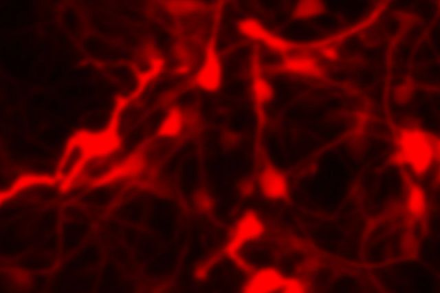 Data image from the Alpha Synuclein assay that is one of the in vitro neuroscience assays offered at Charles River