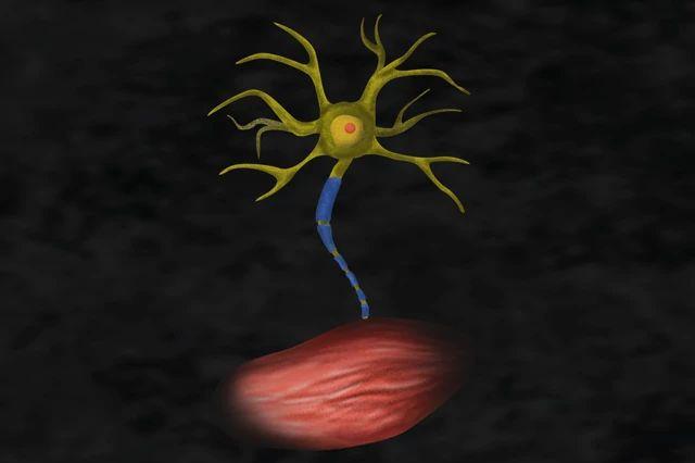 ALS Motor-neuron illustration