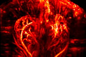 A functional ultrasound image of the brain illustrates one of many preclinical imaging capabilities for neurological diseases.